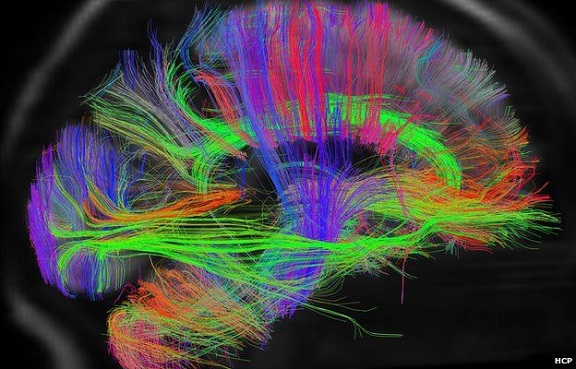 resized Brain - fmri of some of the blood pathways (2)